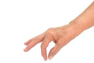 mano de la mujer de edad, la edad