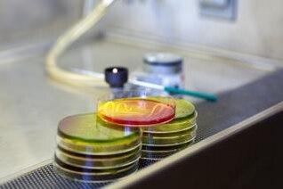 microbiología placa