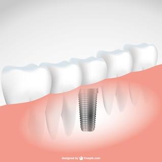 Ilustración vectorial implante de diente