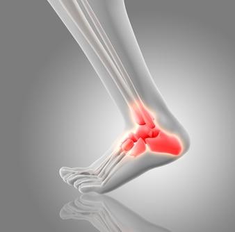 Huesos rojos del tobillo