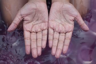 Manos marchitas de niña después de nadar es mucho tiempo