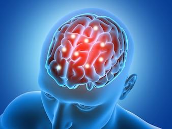 Sfondo medico 3D con figura maschile con parti del cervello evidenziato