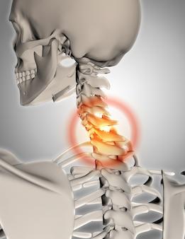 3D rendem de um esqueleto com pescoço em destaque na dor
