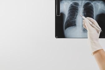 Varredura de raios X com a pena