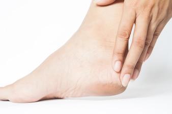 Frau geknackt Fersen mit weißem Hintergrund, Fuß gesundes Konzept