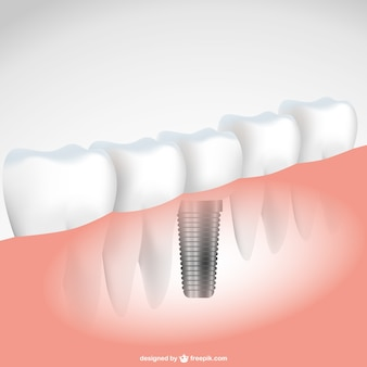 Dental implant vector illustration