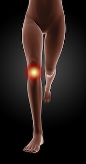 Female legs running with localized pain