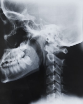 Scientific surgery diagnosis clinical spine