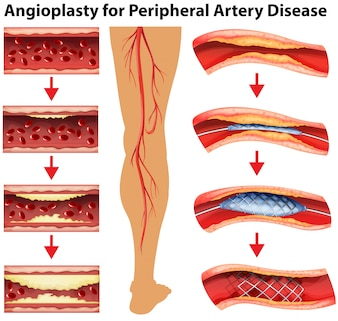Diagram showing angioplasty for peripheral artery disease