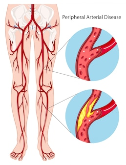 Peripheral arterial disease diagram