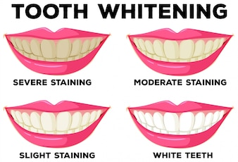 Process of tooth whitening