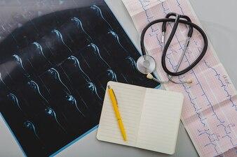 Stéthoscope avec bloc-notes et radiographie