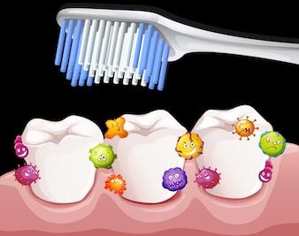 Bakterien zwischen den Zähnen beim Bürsten