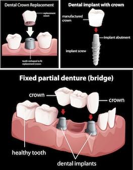 Zahnmedizinische Verfahren auf schwarz
