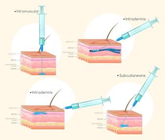 Diferentes tipos de injeções