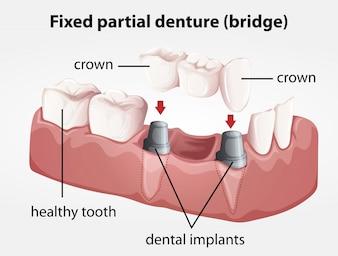 Ponte de dentadura parcial fixa