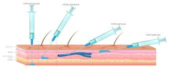 Diagramma che mostra l'iniezione con siringa