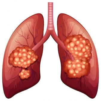 Processo del cancro polmonare in dettaglio