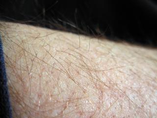 Behaarde huid