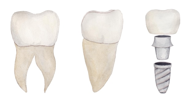 Akwarela zestaw korony zębów ze szpilką