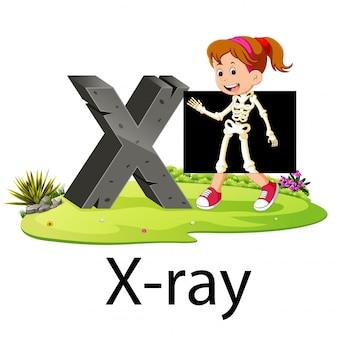 Alfabet x na zdjęciu rentgenowskim z dobrą animacją obok
