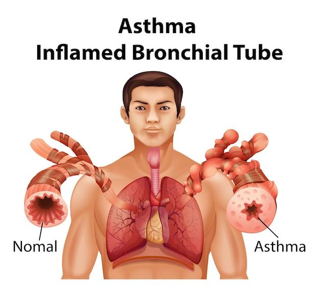 Anatomia człowieka astma schemat zapalenia oskrzeli