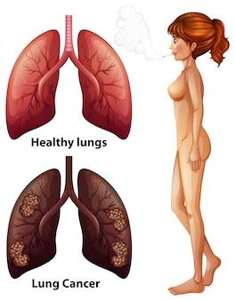 Anatomia człowieka płuc palacza