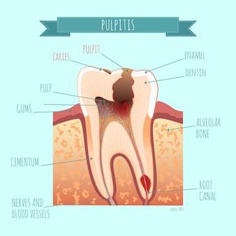 Anatomia zęba. próchnica. zapalenie miazgi