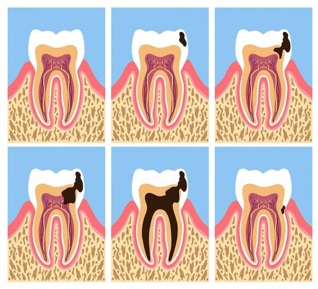 Anatomia zęba z fazami próchnicy