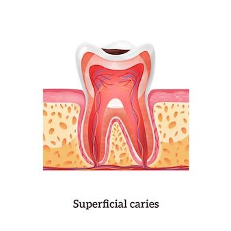 Anatomia zęba z próchnicą powierzchowną