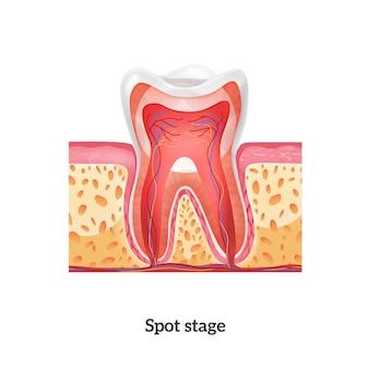 Anatomia zęba z punktowym stadium próchnicy