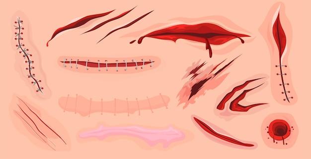 Blizny, skaleczenia i krwawe rany ludzkiej skóry płasko osadzone