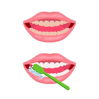 Brudne i czyste zęby. koncepcja czyszczenia zębów i higieny jamy ustnej. otwórz usta zieloną szczoteczką do zębów. ikona o opiece dentystycznej, jak myć zęby.