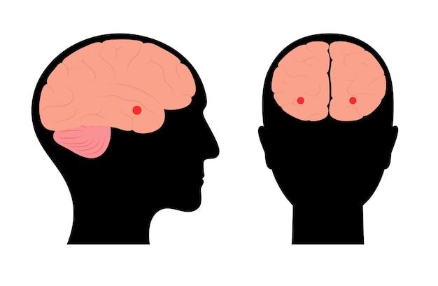 Ciało migdałowate i układ limbiczny. anatomia ludzkiego mózgu. ilustracja wektorowa kory mózgowej i mózgu
