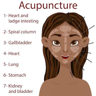 Ciemnoskóra dziewczyna z akupunkturą stref twarzy. styl kreskówkowy. ilustracja.