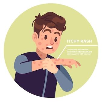 Człowiek drapiący ramiona. zapalenie alergiczne, podrażnienie swędzenie, zadrapanie wyprysk