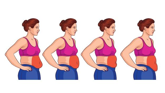 Cztery rodzaje brzucha u kobiet. widok z boku kobiety z nadwagą. obszary problemowe u kobiet na brzuchu