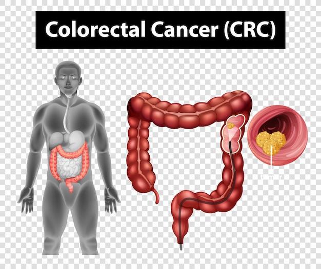 Diagram przedstawiający raka jelita grubego (crc) na przezroczystym tle