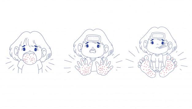Dziewczyna jest chorobą stóp jamy ustnej dłoni