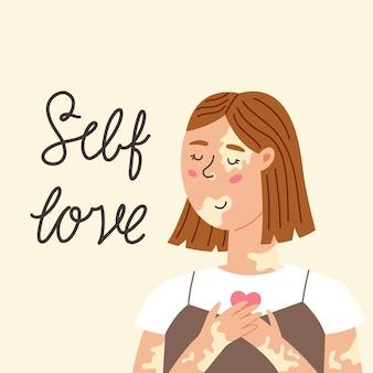 Dziewczyna z bielactwem przyjmuje siebie. ciało pozytywne, miłość do siebie, choroba depigmentacyjna, akceptacja twojego ciała. międzynarodowy dzień bielactwa. nowoczesna ilustracja wektorowa w płaski ręcznie rysowane stylu