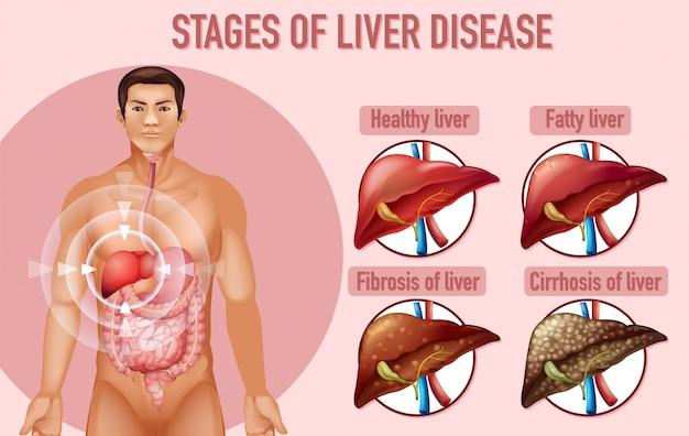 Etapy choroby wątroby