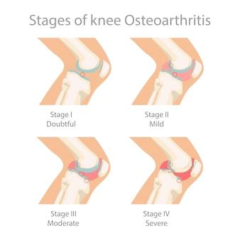 Etapy choroby zwyrodnieniowej stawu kolanowego.