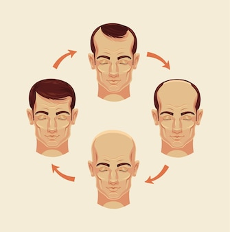 Etapy łysienia ilustracja kreskówka płaska