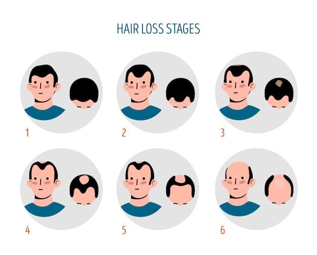 Etapy utraty włosów rysowane ręcznie z mężczyzną