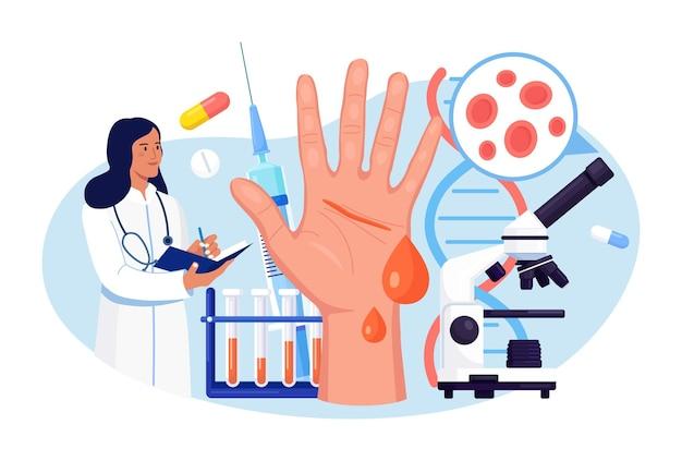 Hemofilia. lekarz zbada niekrzepliwość krwi. ręka z krwawiącą, niezagojoną raną. lekarz leczy pacjenta z anemią, chorobą krwi. szczegółowy test na obecność czerwonych krwinek, płytek krwi