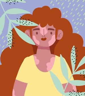 Idealnie niedoskonała, rysunkowa dziewczyna kręcone włosy i bielactwo, karta dekoracji liści