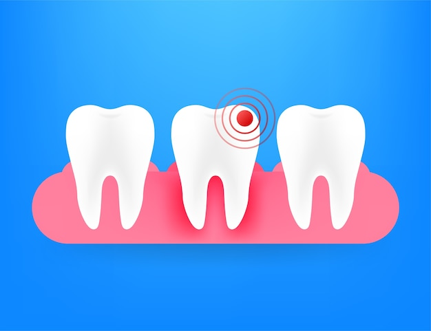 Ikona ilustracja ból zęba