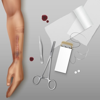 Ilustracja dłoni pacjenta na stole z pęsetą zaciski nici