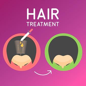 Ilustracja do traktowania włosów