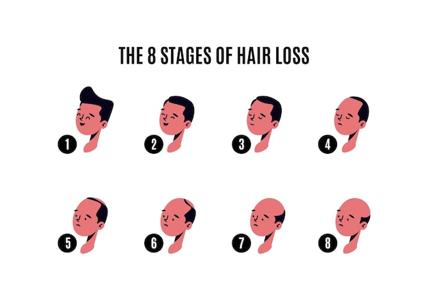 Ilustracja etapy wypadania włosów wyciągnąć rękę